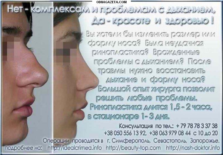 купить Коррекция формы и размера носа кривой рог объявление 1