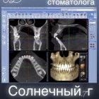 купить Компьютерный дентальный томограф 3dent. Комплексное обследование  кривой рог объявление