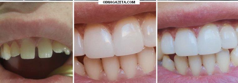 купить В стоматологический кабинет на Гагарина кривой рог объявление 1