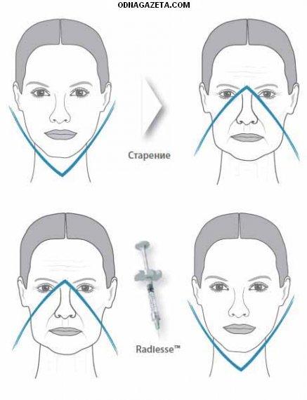 купить Радиесс - безоперационная подтяжка лица! кривой рог объявление 1