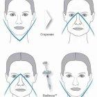 купить Радиесс - безоперационная подтяжка лица! Уникальный  кривой рог объявление