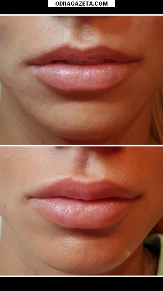 купить Увеличение губ, выравнивание, устранение ассиметрий, кривой рог объявление 1
